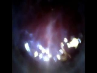 Blick ins Innere meinen Schwanz Endoskop mit Reagenzglas-Cam tief in dick Einführung