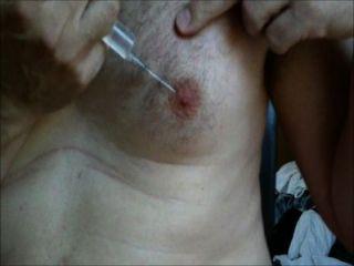 Brustwarzen Kochsalzinjektion
