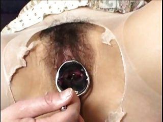 G-Punkt-Orgasmus mit Speculum Verbreitung