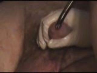 Extrem Harnröhrenstimulation