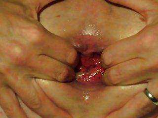 Arsch Füllung Wasser Ballon anal klaffende sonderbare Einfügung