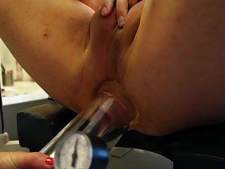 Pegging, anal cock pump, klingend, krankenschwester, arzt, gerade